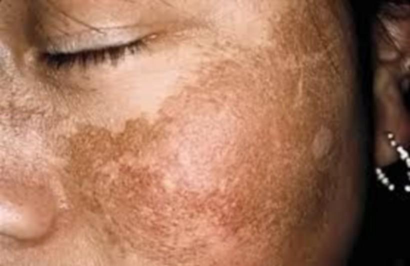 [BEAUTÉ] Melasma : ces taches qui ne partent pas (chroniquebeautenoire.com)